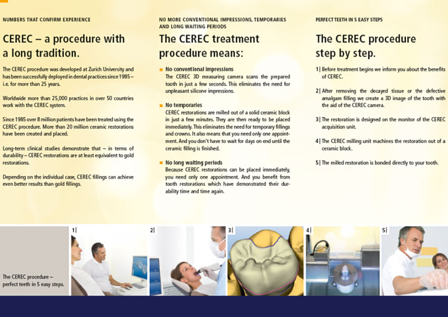 CEREC - How It Works